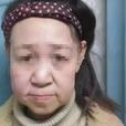 Девушка, которая выглядела в 15 лет на все 60, обрела новое лицо