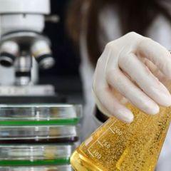 Медики обнаружили женщину, которая мочится алкоголем
