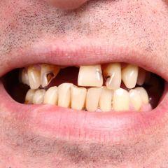 Выпадают зубы: врачи обнаружили страшное последствие коронавируса