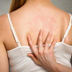 Высыпания на спине - тревожный признак: о чем предупреждают