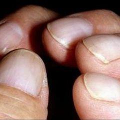 Пальцы рук могут предупредить о раке легких