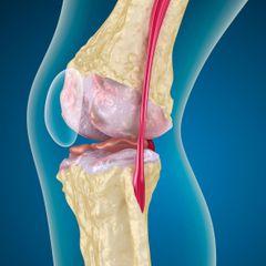 Как правильно лечить колени: вы не поверите в это