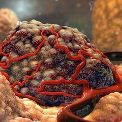 Ученые изобрели чудо: раковые опухоли теперь не скроются