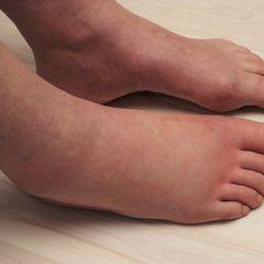 Отекшие ноги могут сказать о многом: послушайте ответ врача